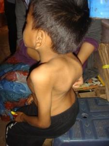 Pasien TB Tulang - Sumber: Kompasiana